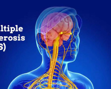 Multiple Sclerosis Natural Treatment: 10 Powerful Herbs