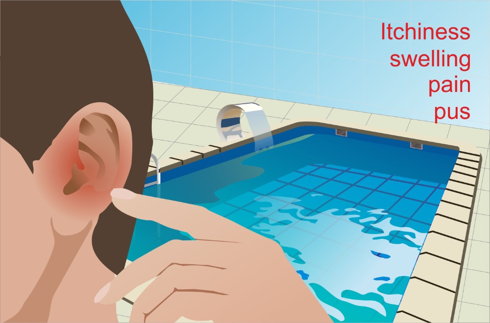 Swimmer's Ear: 4 Natural Remedies, Diet, and Prevention